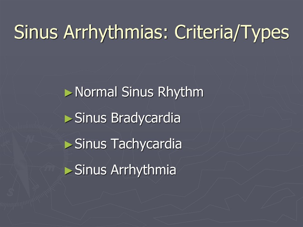Sinus Arrhythmias: Criteria/Types