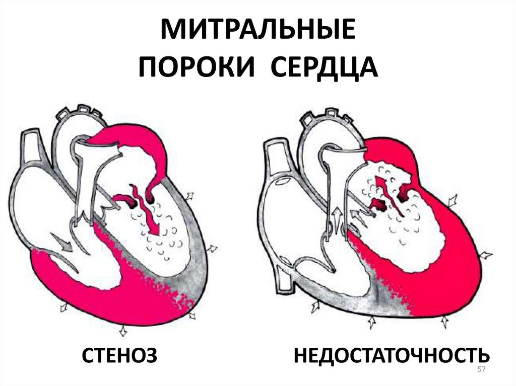 Стеноз и недостаточность митрального клапана картинка