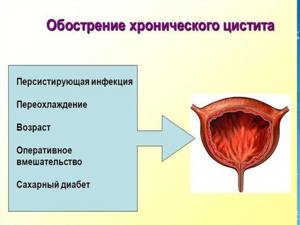 Персистирующий простатит лечение простатита и аденомы в санатории