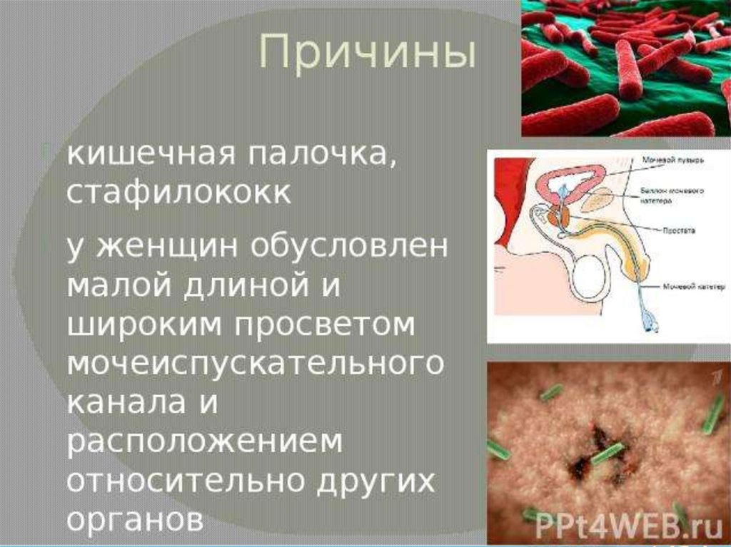 Стафилококковая инфекция простатит отзывы больных простатитом и эффективное лечение отзывы