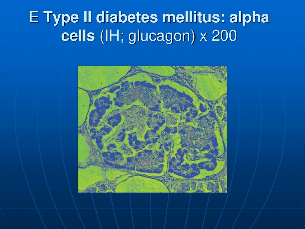 E Type II diabetes mellitus: alpha cells (IH; glucagon) x 200