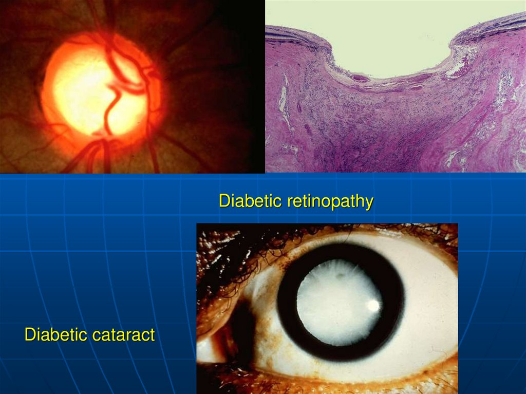 Diabetic retinopathy Diabetic cataract