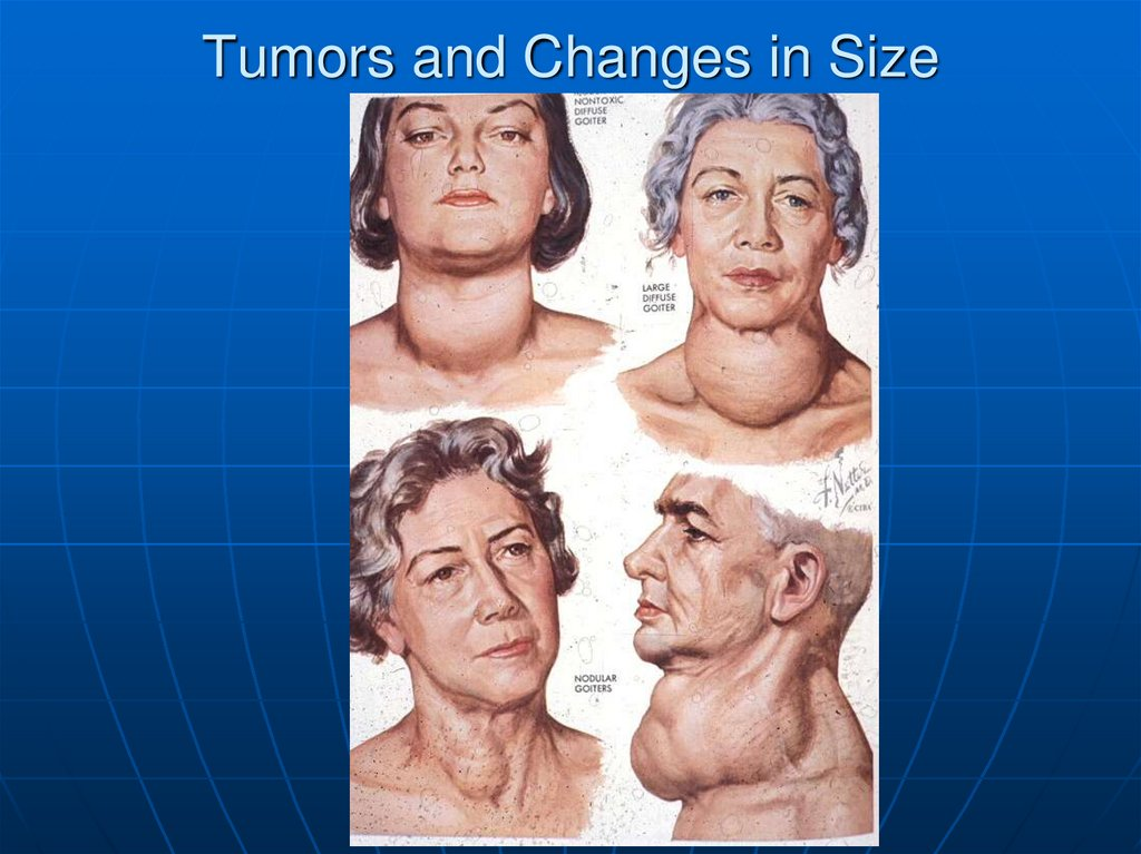 Tumors and Changes in Size