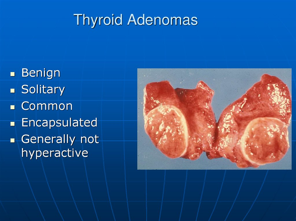 Thyroid Adenomas