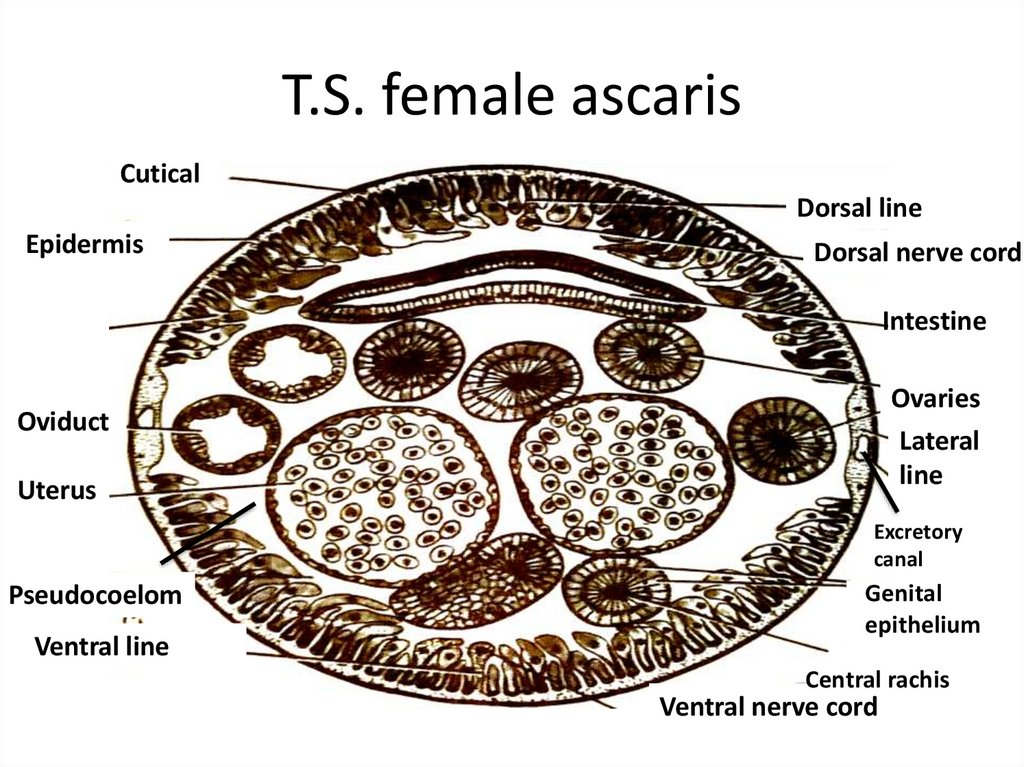 T.S. female ascaris