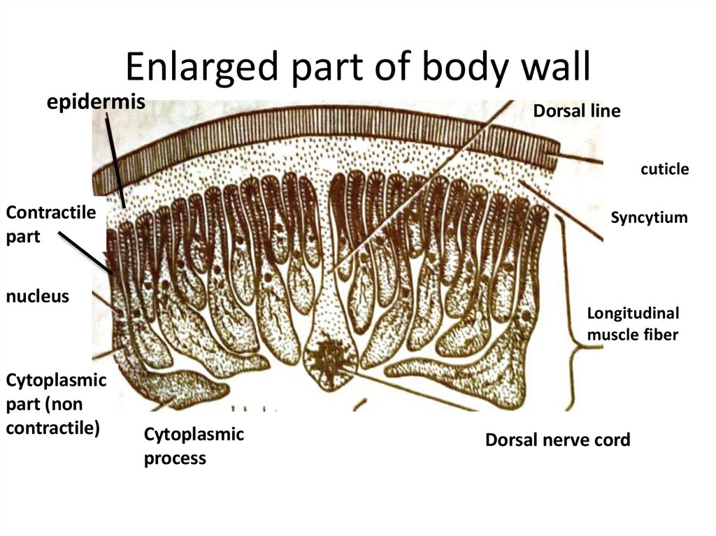 Enlarged part of body wall
