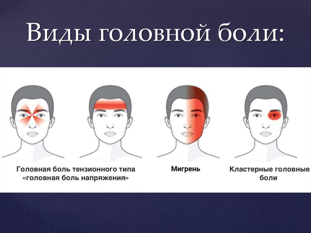 общем виды головных болей на фото демерджи переводе