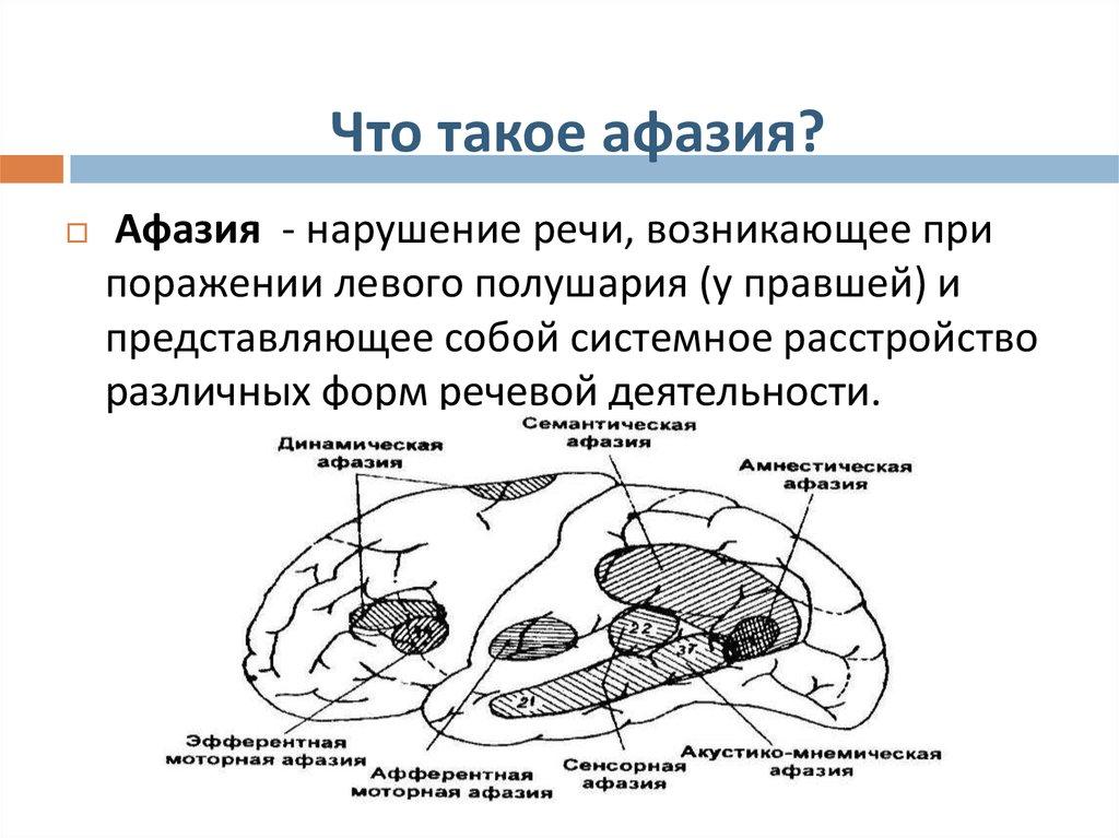 динамическая афазия картинки понимать знать
