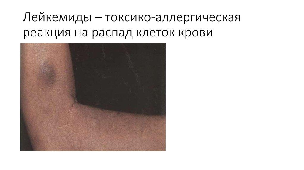 Лейкемиды кожи фото