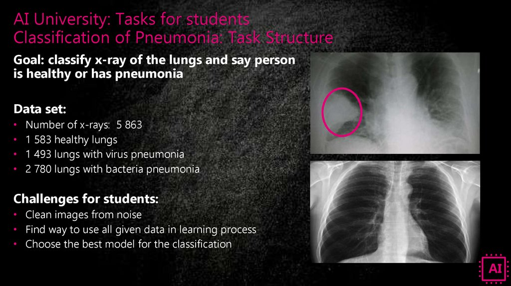 AI University: Tasks for students Classification of Pneumonia: Task Structure