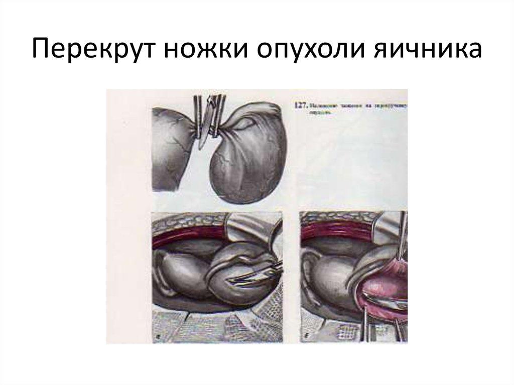 Перекрут ножки опухоли яичника