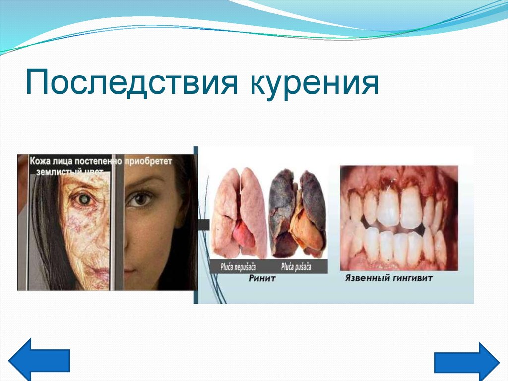 Последствия от табака картинки