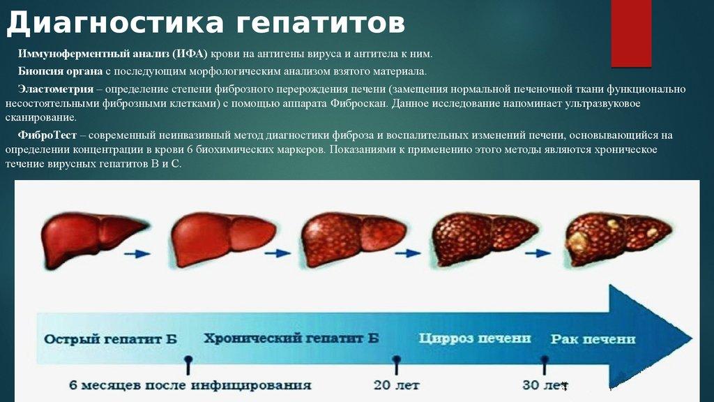 Гепатит Б Симптомы И Лечение Диета.
