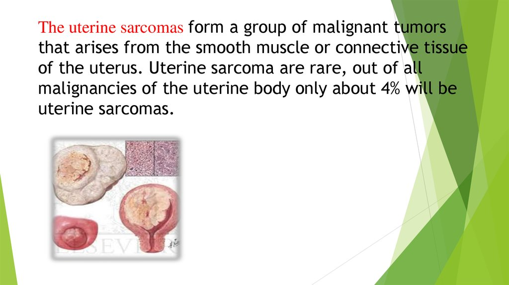 The uterine sarcomas form a group of malignant tumors that arises from the smooth muscle or connective tissue of the uterus.
