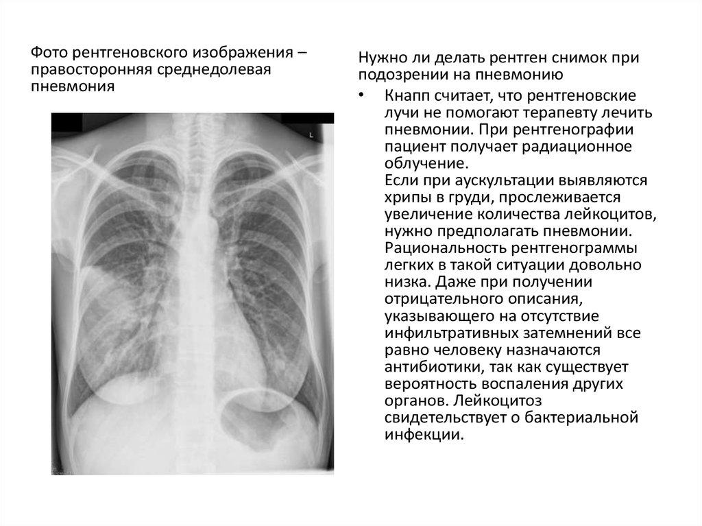 ревматоидный артрит описание рентген