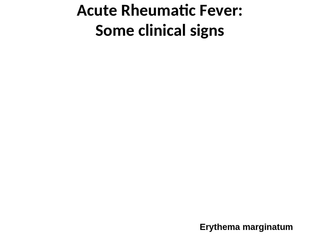 Acute Rheumatic Fever: Some clinical signs
