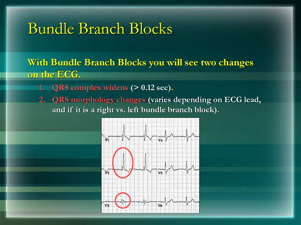 Bundle Branch Blocks