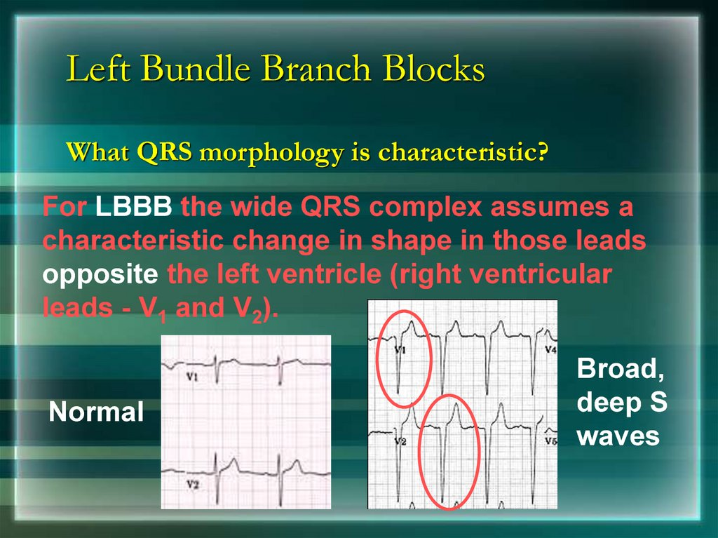 Left Bundle Branch Blocks