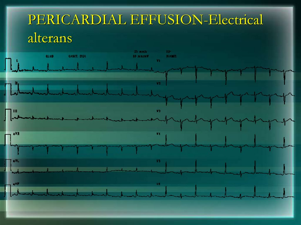 PERICARDIAL EFFUSION-Electrical alterans