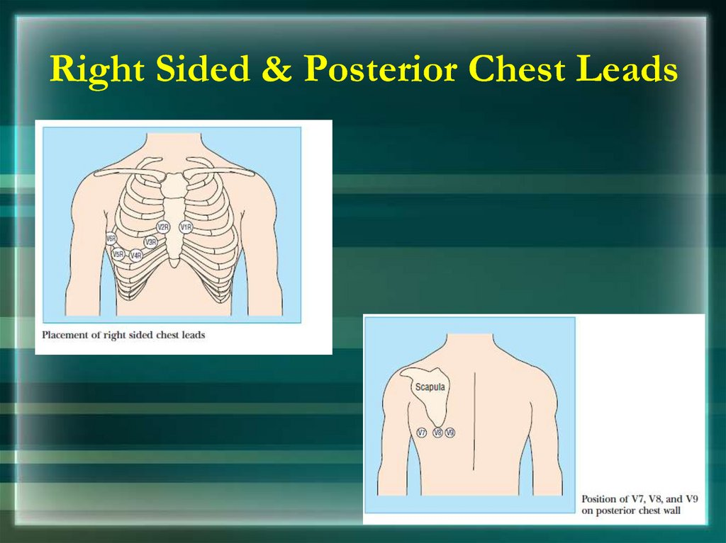 Right Sided & Posterior Chest Leads