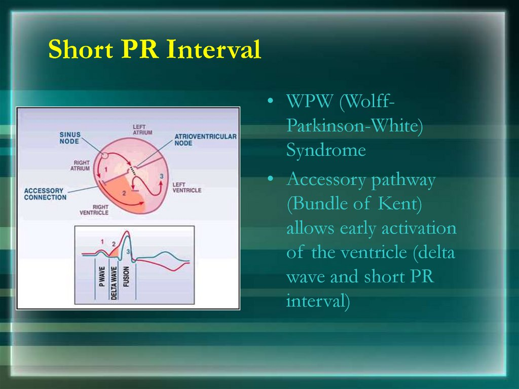 Short PR Interval