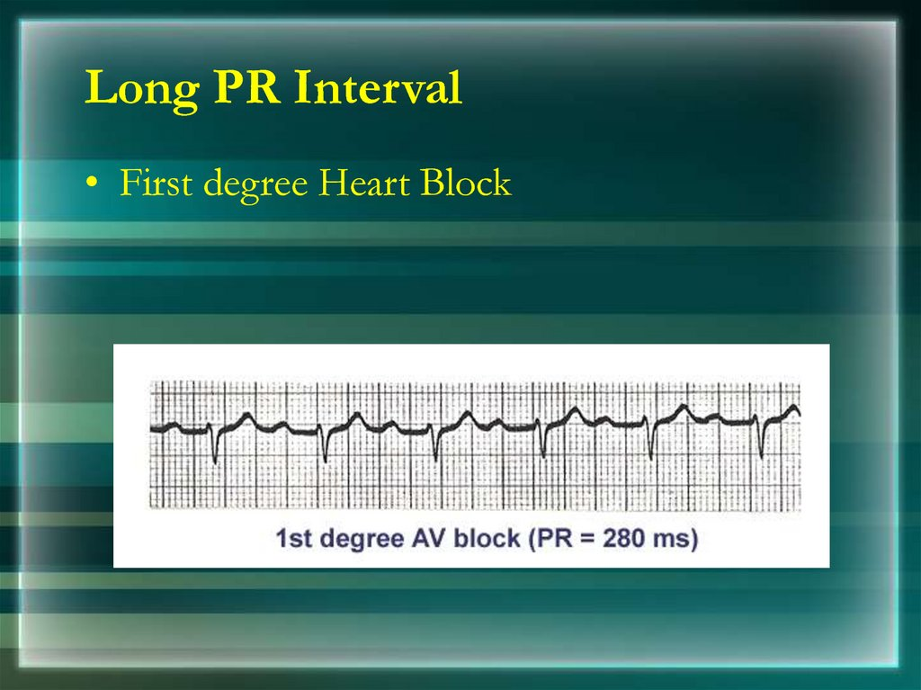 Long PR Interval