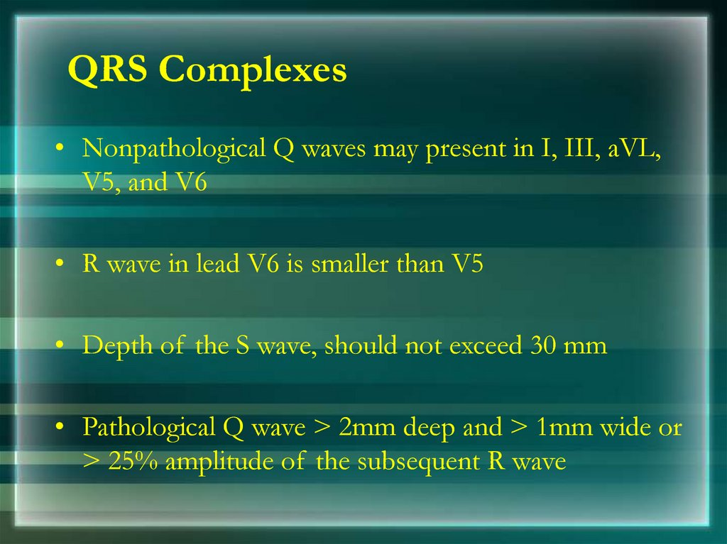 QRS Complexes