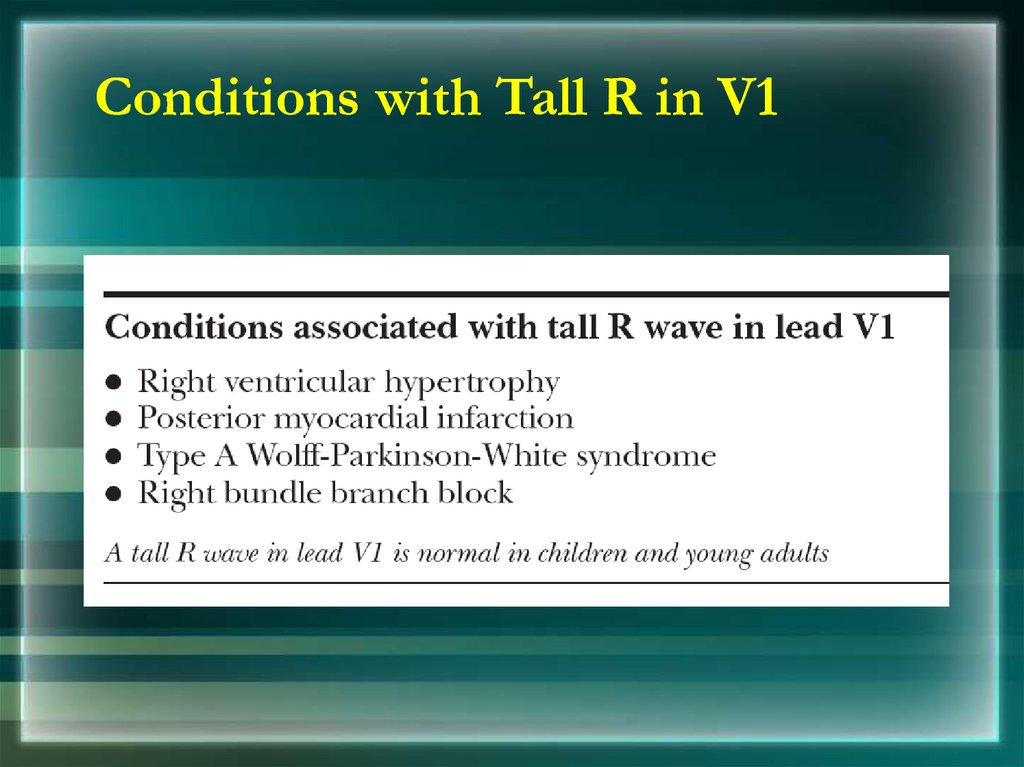 Conditions with Tall R in V1