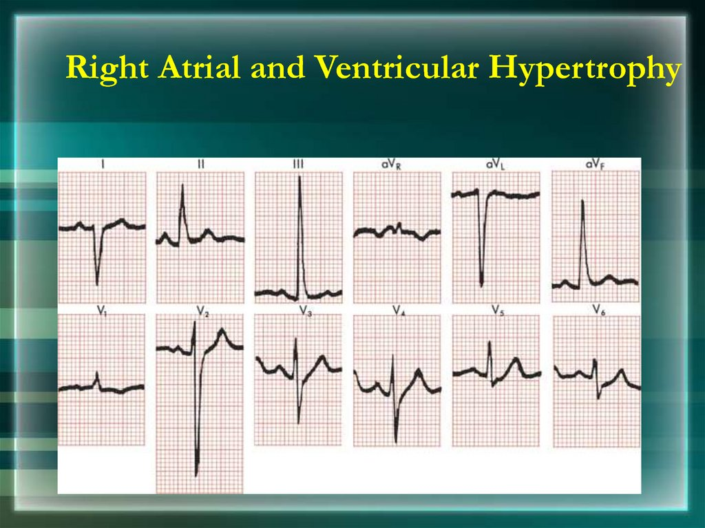 Right Atrial and Ventricular Hypertrophy
