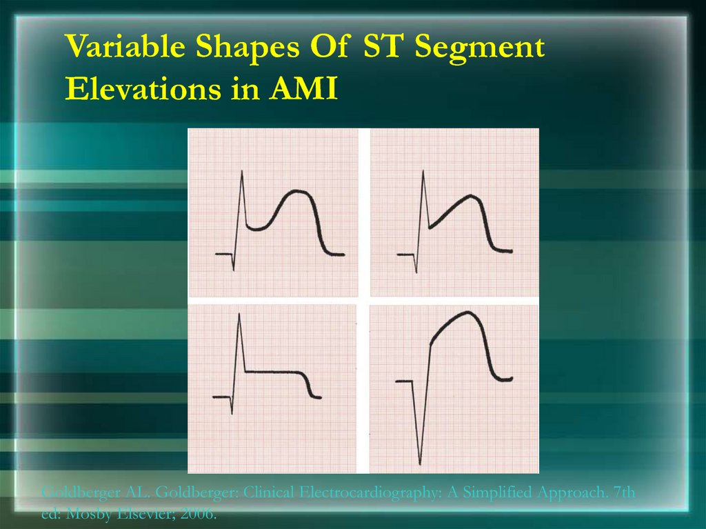 Variable Shapes Of ST Segment Elevations in AMI