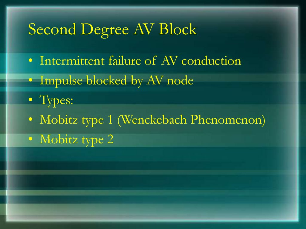Second Degree AV Block