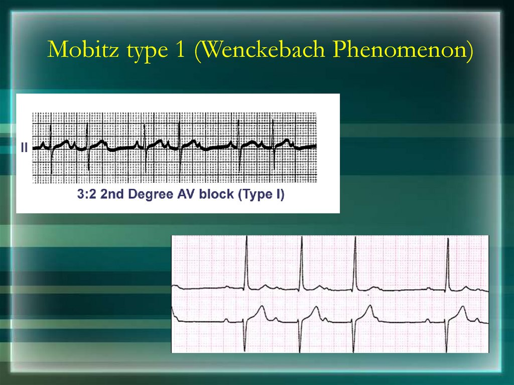 Mobitz type 1 (Wenckebach Phenomenon)