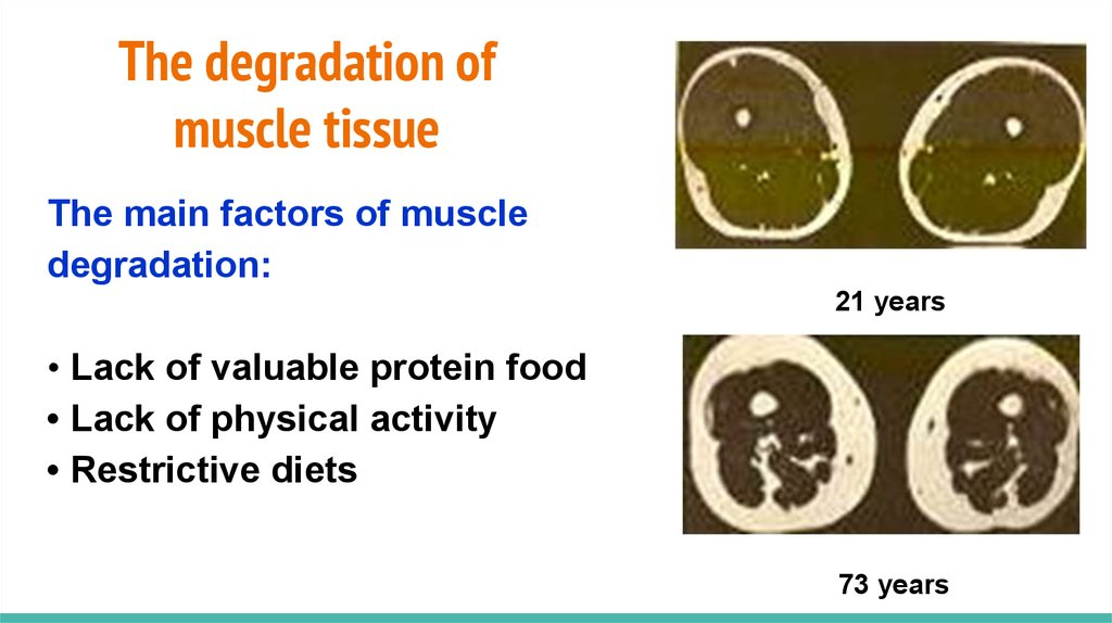 The degradation of muscle tissue