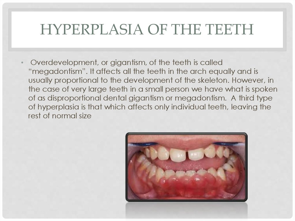 Hyperplasia of the teeth
