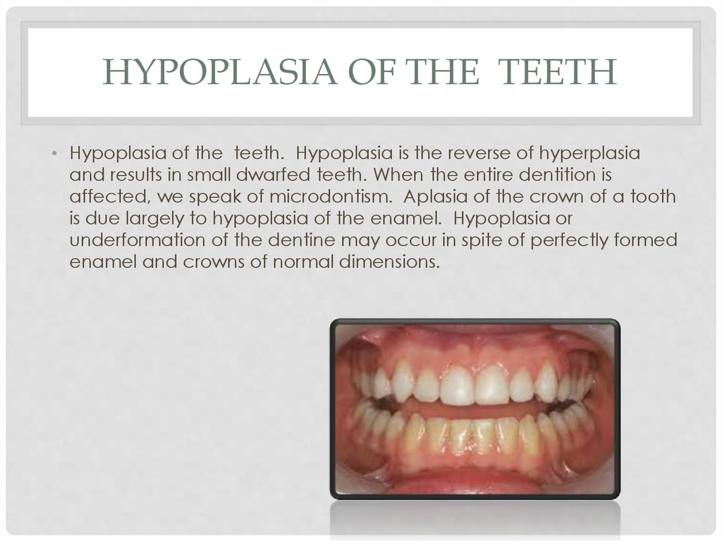Hypoplasia of the teeth