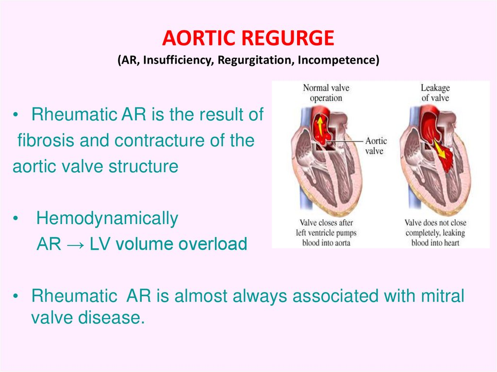 AORTIC REGURGE (AR, Insufficiency, Regurgitation, Incompetence)