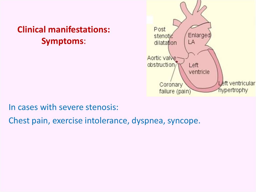 Clinical manifestations: Symptoms: