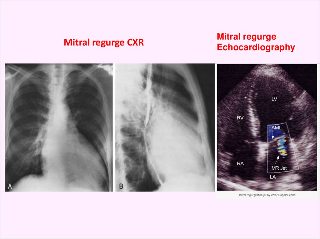 Mitral regurge CXR