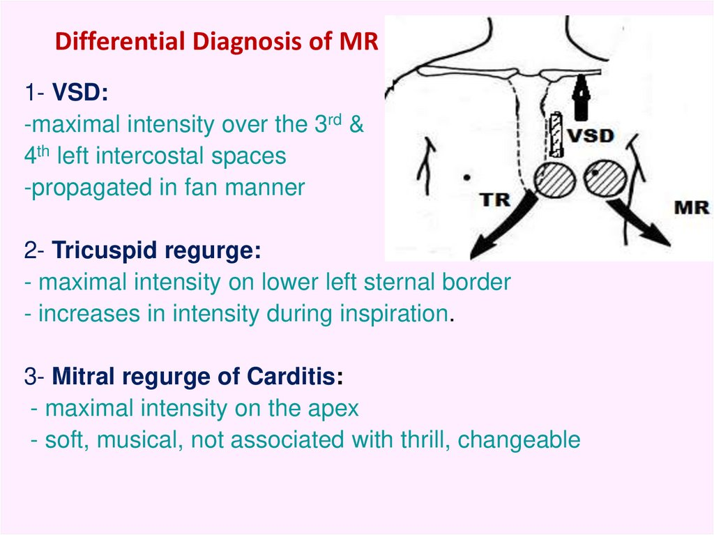 Differential Diagnosis of MR