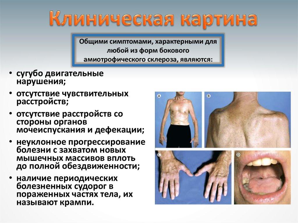 бас болезнь симптомы