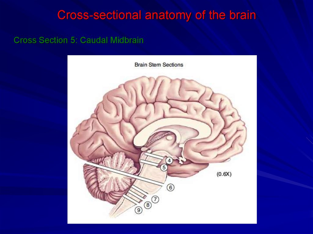 Cross-sectional anatomy of the brain