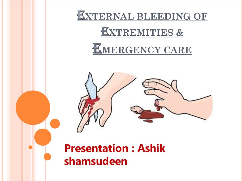 EXTERNAL BLEEDING OF EXTREMITIES & EMERGENCY CARE
